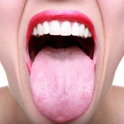 mauvaise haleine langue blanche